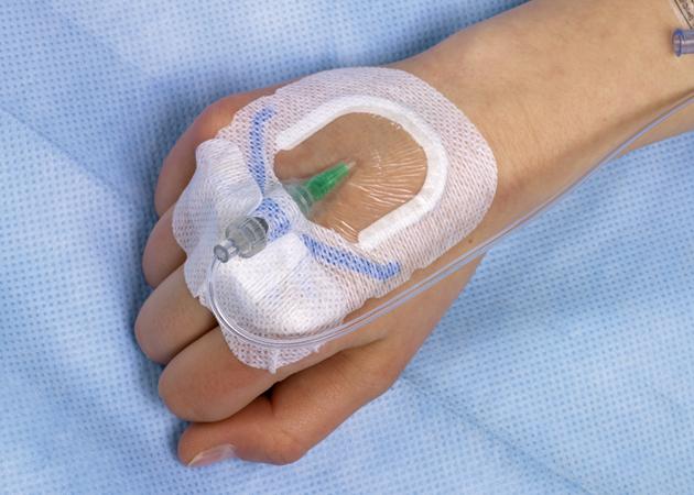 peripheral I.V. catherer.jpg