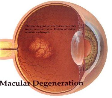 Age related Macular Degeneration Market