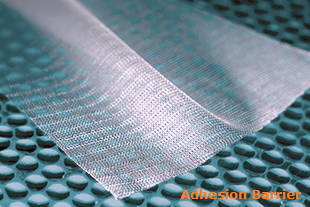 Adhesion Barrier Market Size