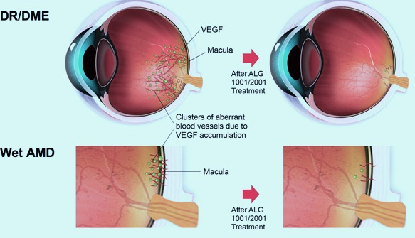 Age-related macular degeneration Therapeutic