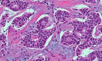 ER+ Breast Cancer
