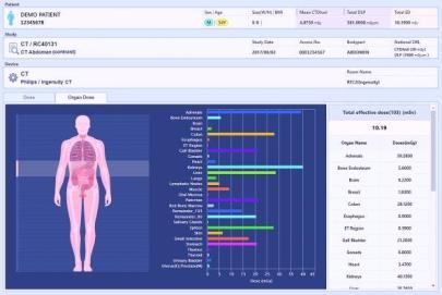 Radiation Dose Management Market Analysis